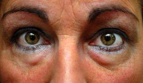 Comment Degonfler ses yeux au réveil ?
